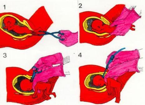 aborto-de-parto-parcial
